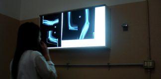 Рентгеновский диагностический комплекс поставят в поликлинику Павшинской поймы